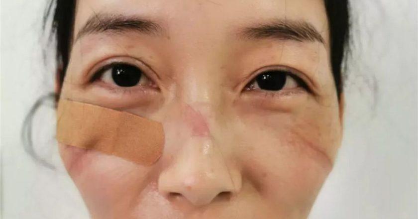 Chińska pielęgniarka pod koniec zmiany. Fot. twitter.com/PDChina